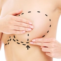 $500 off Breast augmentation