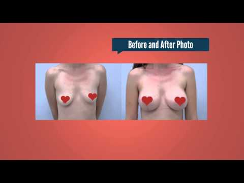 Breast Augmentation Phoenix AZ – G. Robert Meger MD Arizona